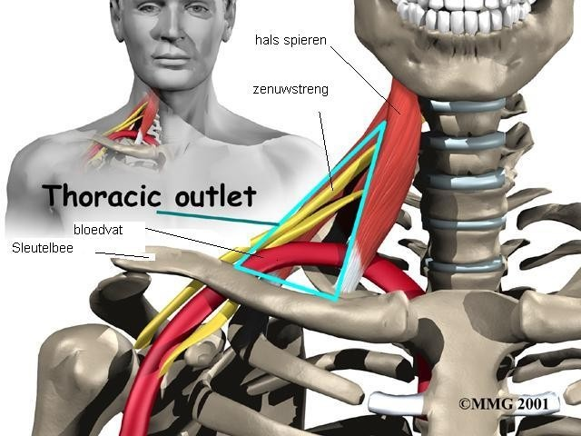 Thoracic outlet syndroom